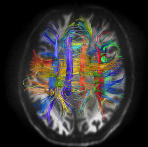 Mass General esearcher Van Wedeen, MD, of the Martinos Center for Biomedical Imaging, has created a new generation of brain  mapping images that promises to open the door to understanding and treating brain disorders such as Alzheimer's disease.