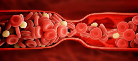 Blood clots can affect anyone.