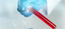 By conducting a liquid biopsy with a blood sample, Mass General researchers can detect the genetic changes in tumor cells that drive resistance to cancer treatment.