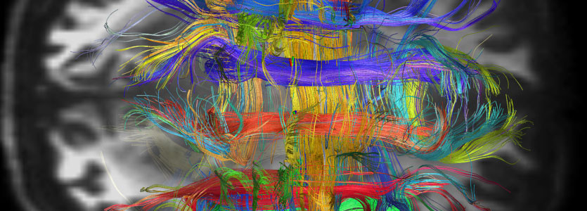 Living human brain pathways appear as colorful bundles of nerve cell fibers using  new brain mapping technology from the Mass General Martinos Center for Biomedical Imaging.