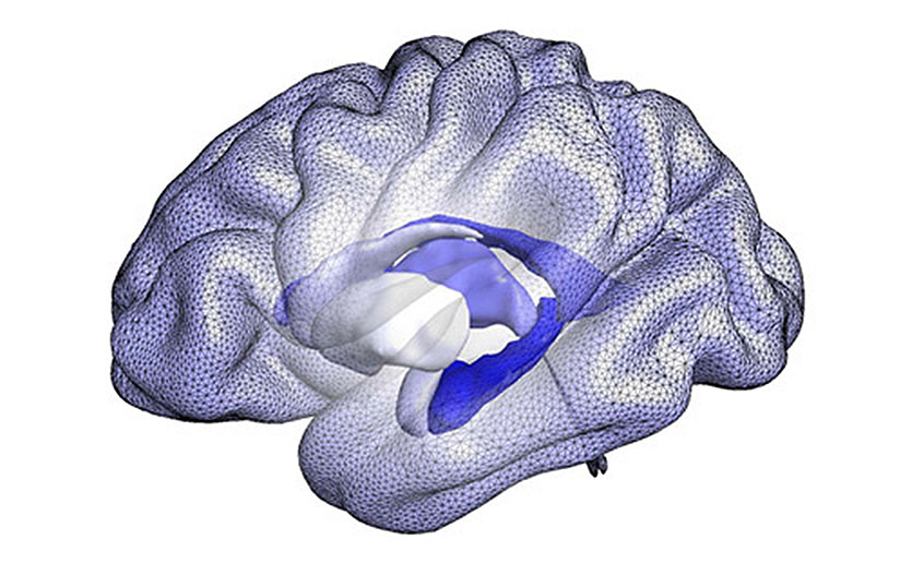 BrainPrint shows shape differences in the brain that are unique to each person, similar to a fingerprint.