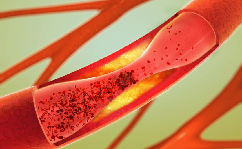 When the body has too much cholesterol it can build in artery walls and block blood flow to the heart.