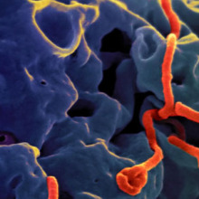 Ebola viruses emerge from a monkey cell after employing the cell's own apparatus to reproduce. US NIAID photo.