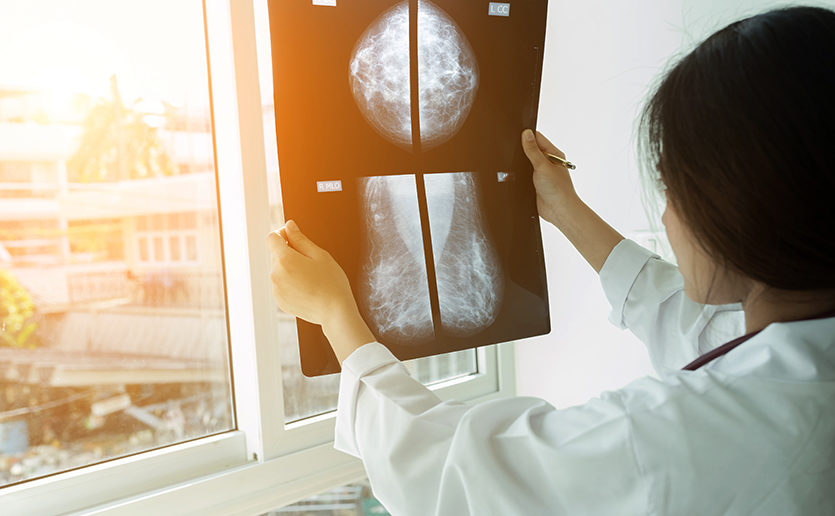 breast cancer artificial intelligence