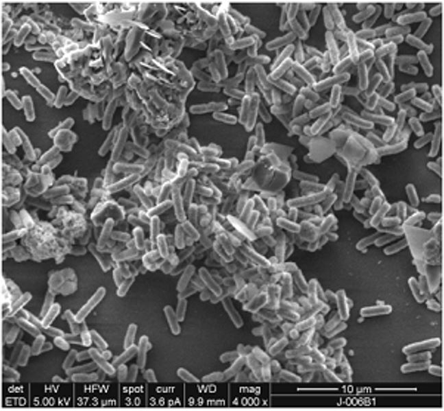 This image from an electron microscope shows the biofilm that Shigella use to protect themselves from bile salts.
