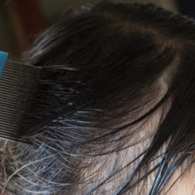 Head lice can be found on one out of four elementary school students in the US.