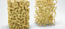 A normal bone structure (left) beside one showing the impact of osteoporosis